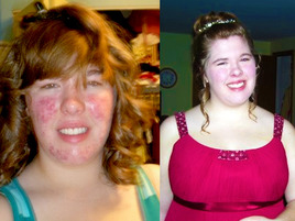 Check Out This Sparkler's AMAZING Acne Makeover!